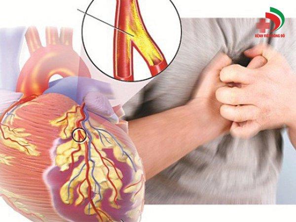 Ưu điểm vượt trội của siêu âm IVUS trong điều trị xơ vữa động mạch vành - ảnh 1