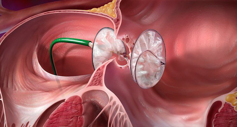 Đóng lỗ thông liên nhĩ bằng kỹ thuật mổ tim hở ít xâm lấn - ảnh 1