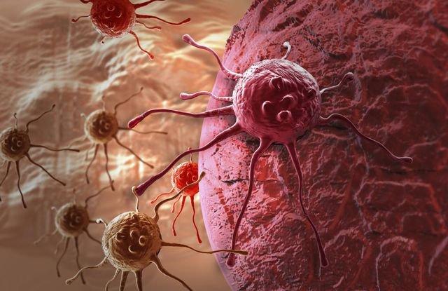 Hệ miễn dịch là gì?, Điều trị ung thư bằng hệ thống miễn dịch - ảnh 1