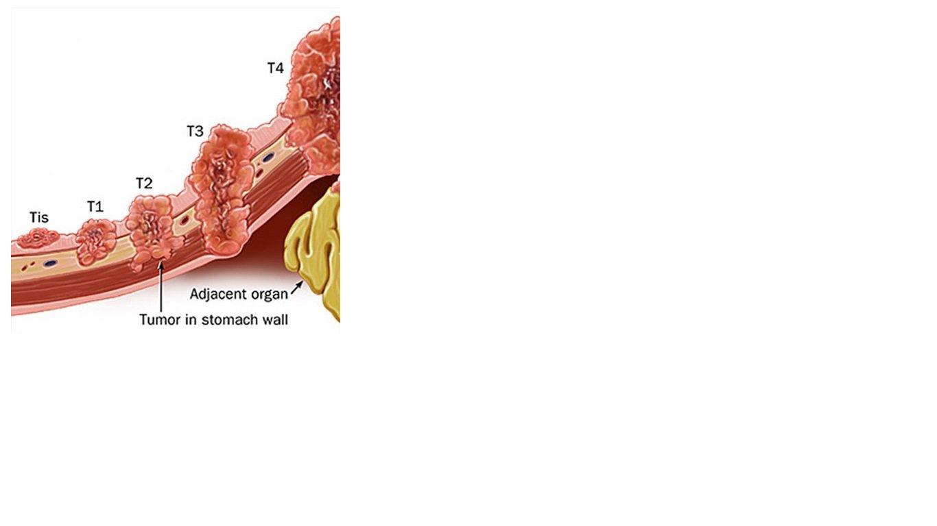 Tế bào ung thư có gì khác với tế bào bình thường? - ảnh 1