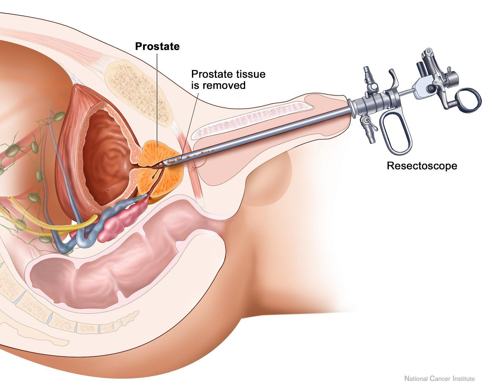 Nội soi cắt u xơ tuyến tiền liệt lành tính - ảnh 2