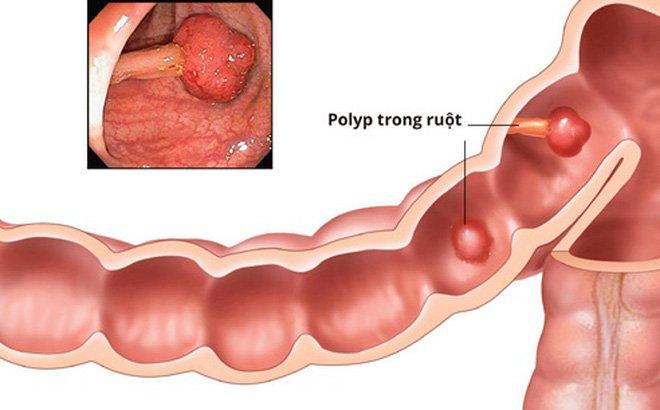 Nội soi cắt polyp ống tiêu hóa > 1cm hoặc đa polyp - ảnh 1