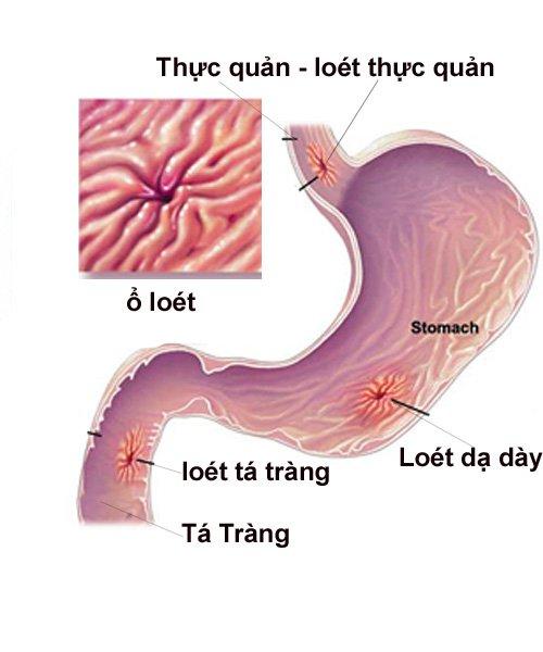 Có thể thủng dạ dày nếu bị viêm loét dạ dày nặng - ảnh 1