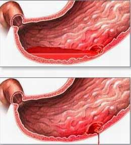 Mổ nội soi điều trị thủng ổ loét dạ dày - hành tá tràng - ảnh 1