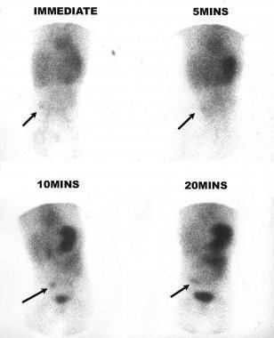Kỹ thuật xạ hình chẩn đoán chảy máu dạ dày, ruột (xuất huyết đường tiêu hóa) ở trẻ em - ảnh 1