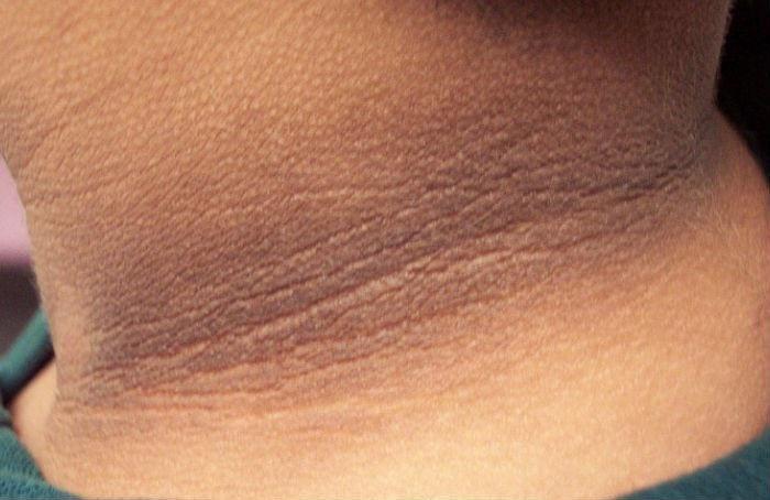 Bệnh gai đen (acanthosis nigricans) có nguy hiểm không? - ảnh 1