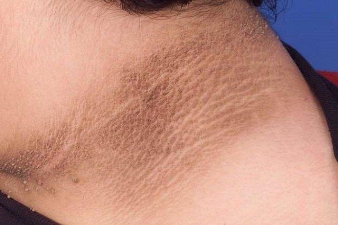 Bệnh gai đen (acanthosis nigricans) có nguy hiểm không? - ảnh 2