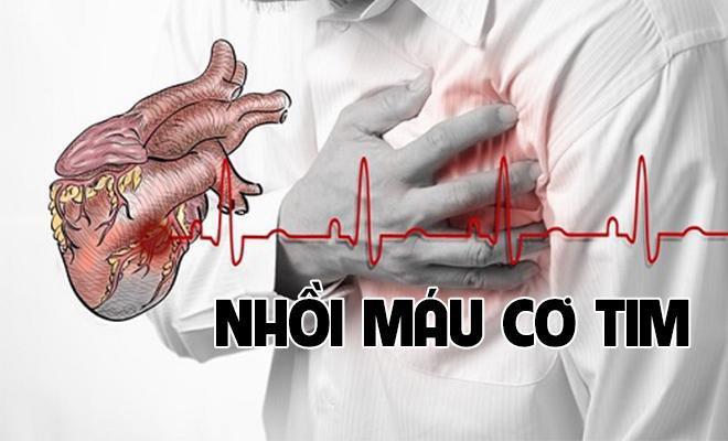 Xạ hình tưới máu cơ tim được dùng khi nào? - ảnh 1