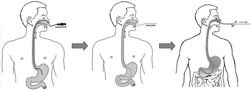 Chăm sóc bệnh nhân đặt ống thông dạ dày, tránh viêm nhiễm - ảnh 2