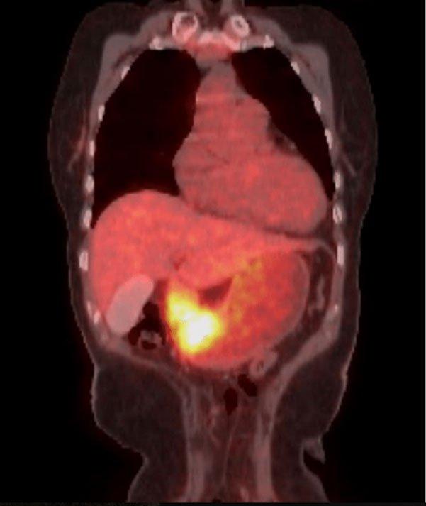 Những điều cần biết về ung thư dạ dày - ảnh 6