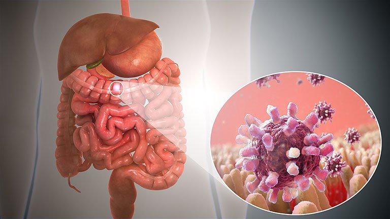Vi khuẩn Shigella gây bệnh gì? - ảnh 1