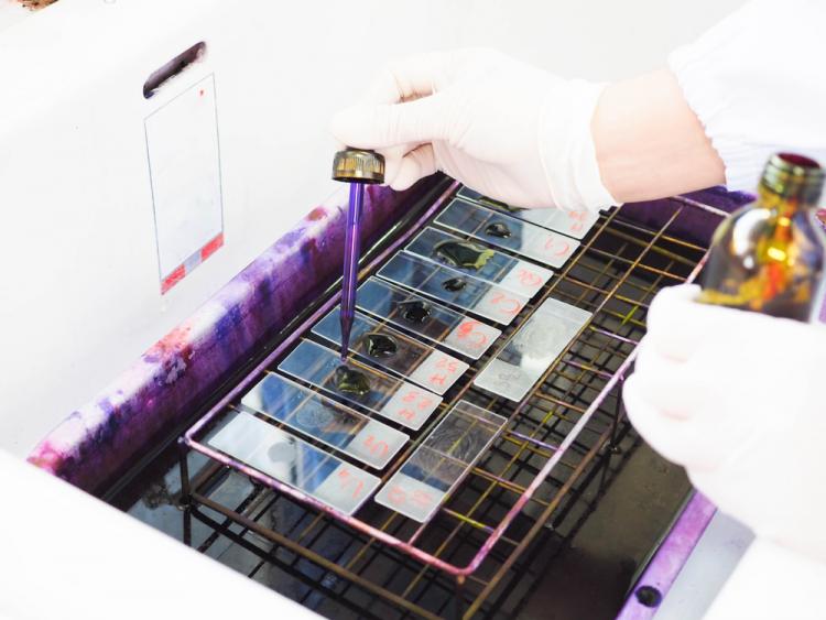 Cách phát hiện vi khuẩn lậu - ảnh 3