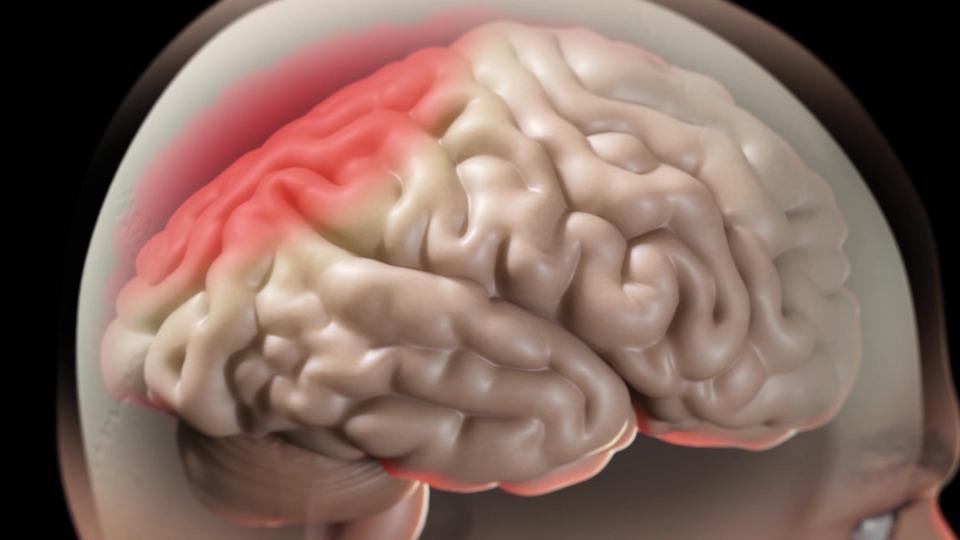 Uống rượu bia ảnh hưởng tới hệ thần kinh như thế nào? - ảnh 1
