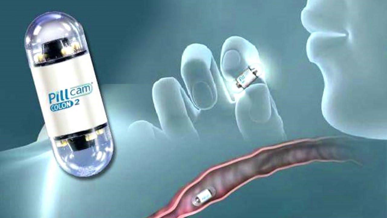 Tìm hiểu phương pháp nội soi dạ dày viên nang - ảnh 1