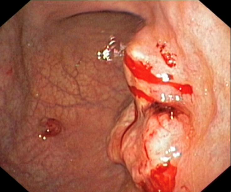 Hình ảnh nội soi viêm dạ dày và dạ dày bình thường - ảnh 5