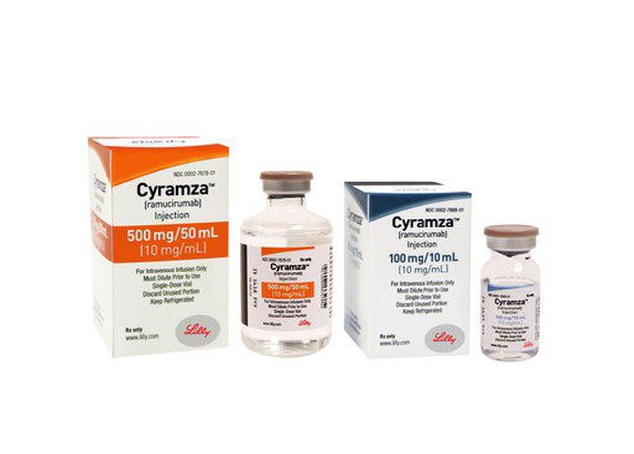 Điều trị thành công ung thư thực quản giai đoạn muộn biến chứng tiêu hóa bằng hóa trị - ảnh 1