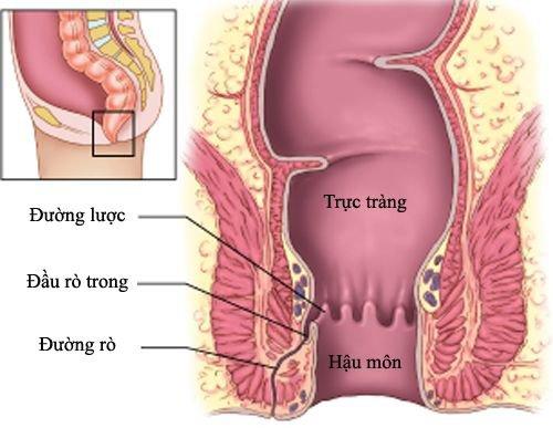 Nong hậu môn sau phẫu thuật có hẹp - ảnh 1