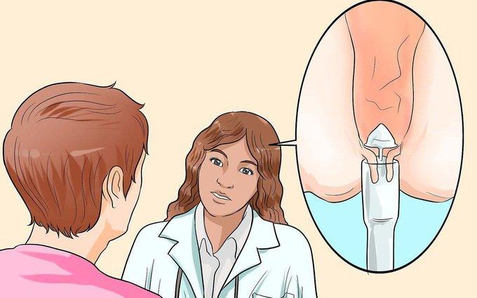 Điều trị trĩ ngoại: Những điều cần biết - ảnh 6