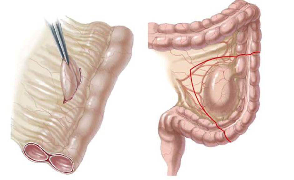 Nang ruột đôi là bệnh gì? và Cách điều trị - ảnh 1