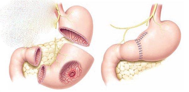 Cắt dạ dày do ung thư: Những điều cần lưu ý - ảnh 5