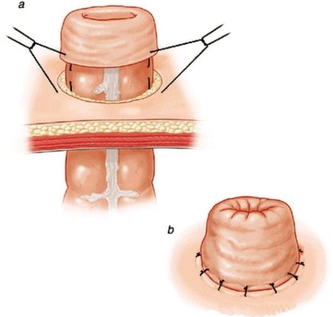 Phẫu thuật nội soi làm hậu môn nhân tạo - ảnh 2
