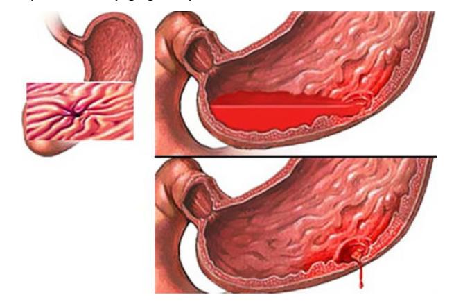 Các thể lâm sàng và loét dạ dày tá tràng - ảnh 3