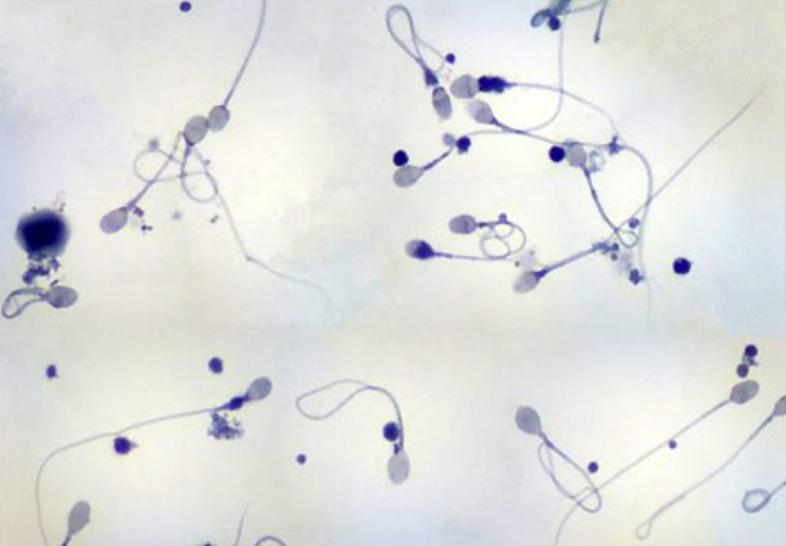 Các đối tượng cần sàng lọc di truyền phôi tiền làm tổ (PGS) - ảnh 1