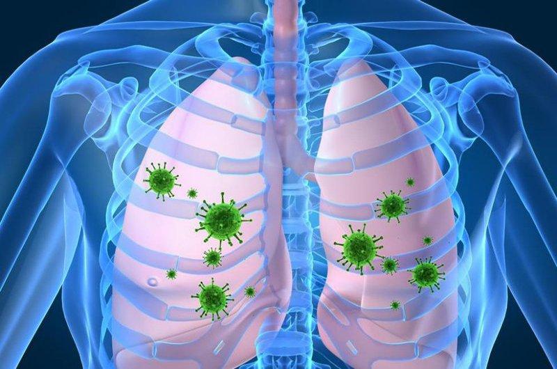 Những điều cần biết về bệnh viêm phổi hít - ảnh 1