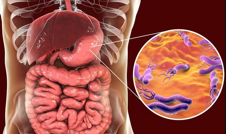 Bệnh loét dạ dày tá tràng có chỉ định mổ - ảnh 1