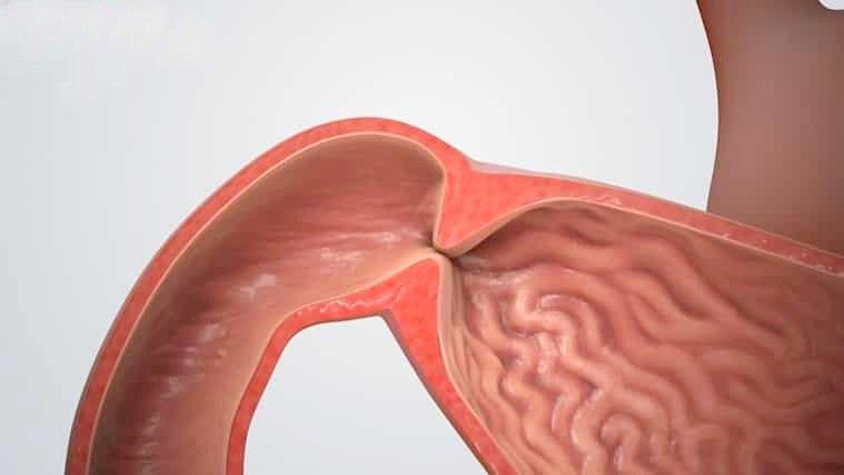 Bệnh loét dạ dày tá tràng có chỉ định mổ - ảnh 2