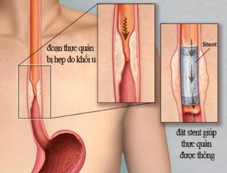 Đặt stent điều trị ung thư thực quản giai đoạn cuối - ảnh 2