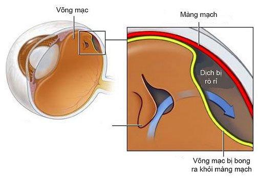 Phẫu thuật điều trị vết thương mạch đốt sống - ảnh 1