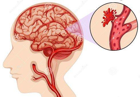 Nguyên nhân tăng huyết áp nặng phải cấp cứu - ảnh 1