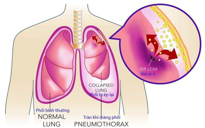 Tiêm xơ giãn tĩnh mạch thực quản - ảnh 2