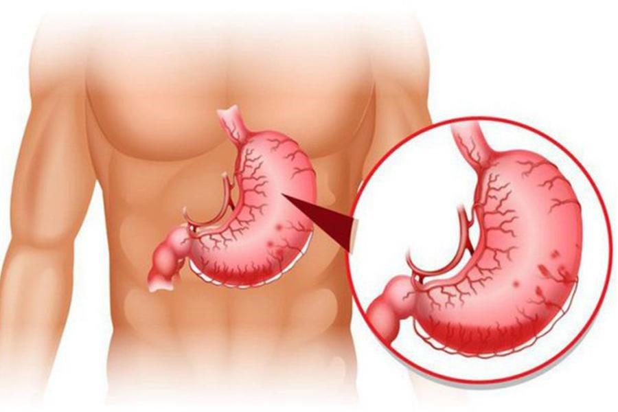 Tiêm xơ giãn tĩnh mạch thực quản - ảnh 1