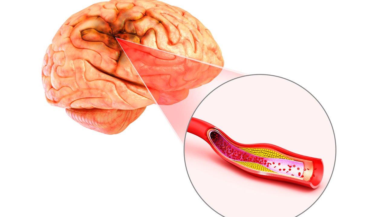 Can thiệp động mạch đốt sống bằng stent như thế nào? - ảnh 2