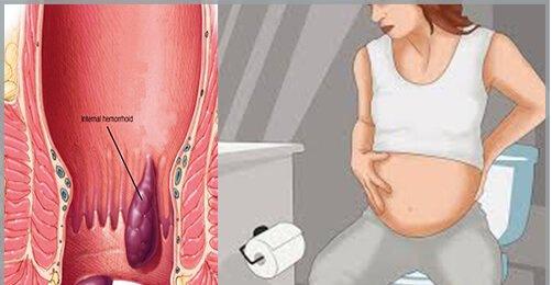 Tắc mạch trĩ là gì? Điều trị như thế nào? - ảnh 2
