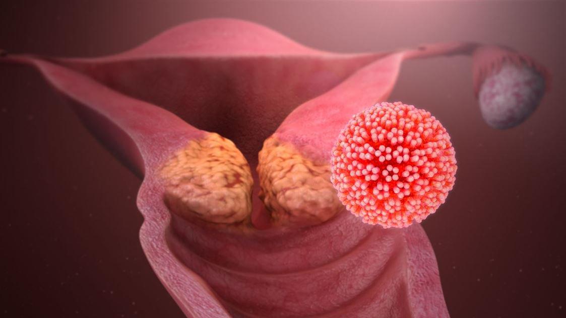 Nhiễm HPV ở nam giới gây ra Ung thư dương vật  - ảnh 1