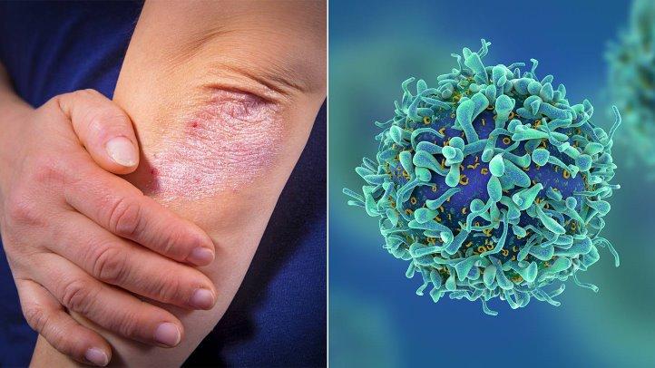 Tiêm corticoid vào khớp có hại gì? và Những điều cần lưu ý - ảnh 3