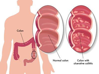 Bệnh Crohn ở trẻ em và thiếu niên - ảnh 1