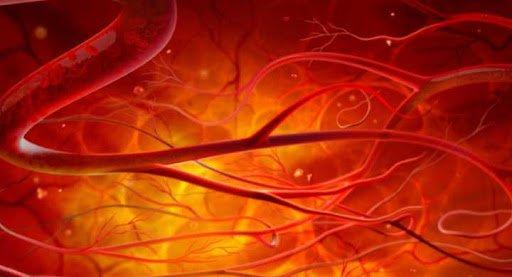 Siêu âm hệ động mạch cảnh và động mạch đốt sống trong các trường hợp nào? - ảnh 1