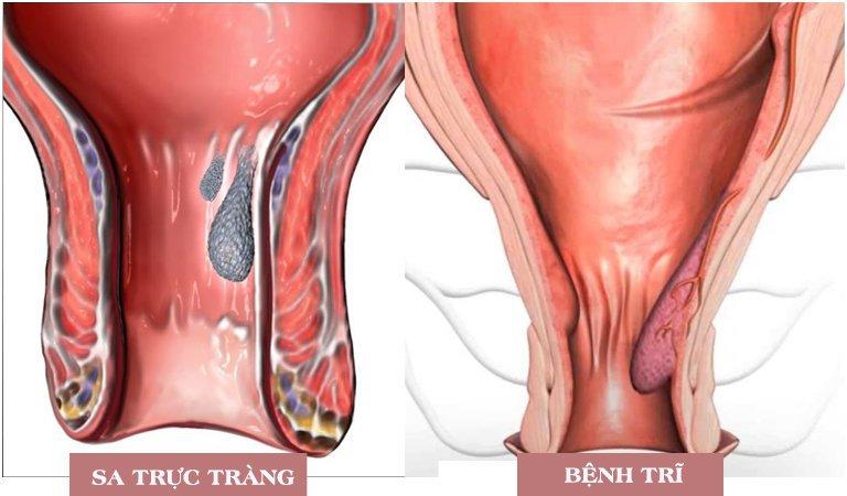 Điều trị sa trực tràng bằng mổ nội soi - ảnh 3