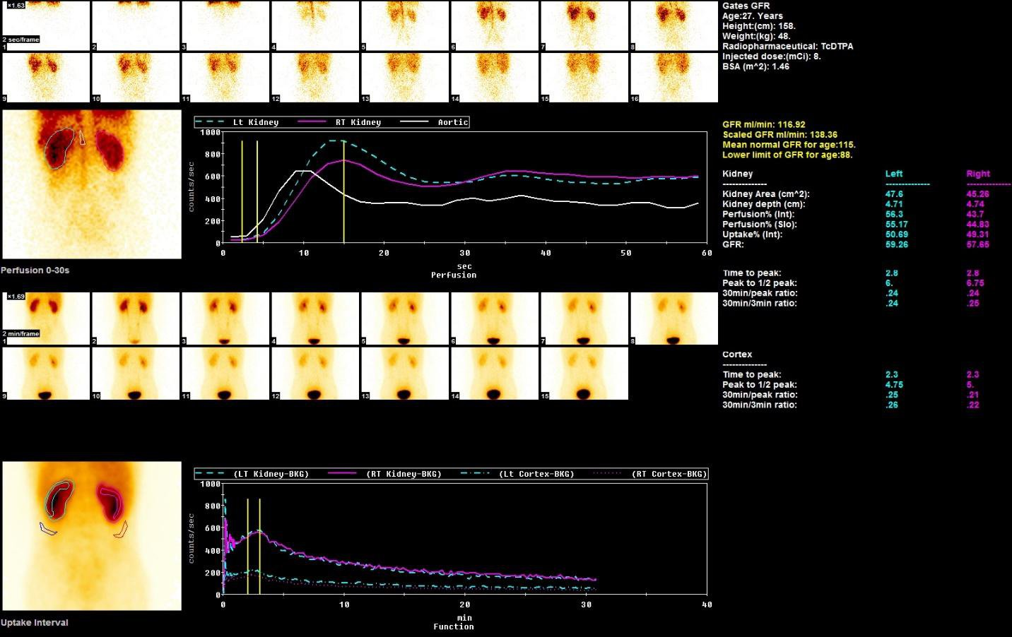 Hai kỹ thuật kiểm tra thận: Siêu âm và xạ hình - ảnh 3