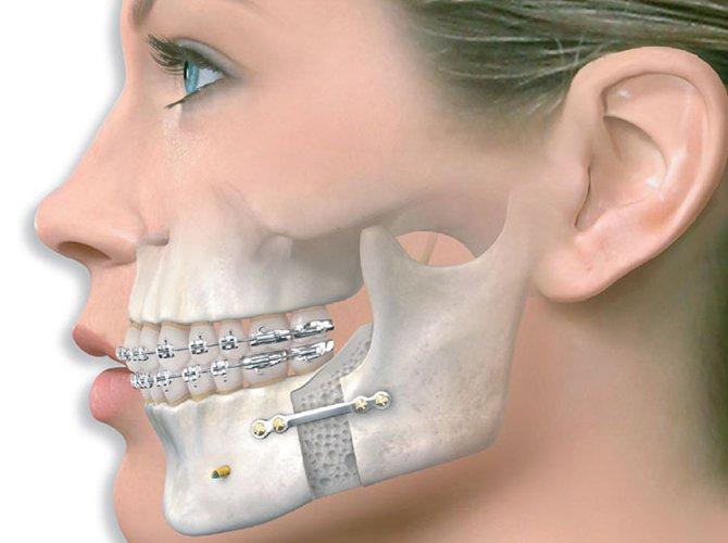 Quy trình chụp cắt lớp vi tính hàm mặt không tiêm thuốc đối quang theo mặt phẳng axia - ảnh 1