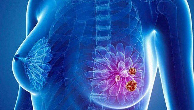 Các yếu tố nguy cơ gây ung thư buồng trứng - ảnh 2