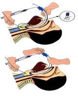 Gây mê nội khí quản phẫu thuật dị dạng tử cung - ảnh 3