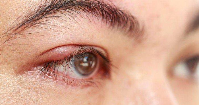 Nguyên nhân gây chắp, lẹo mắt - ảnh 1