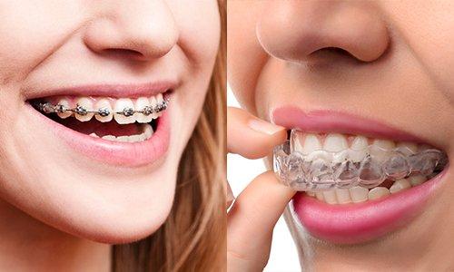 Khi nào cần chụp x quang răng khôn? - ảnh 2