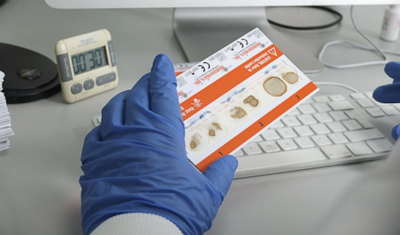 Các xét nghiệm tìm máu ẩn trong phân - ảnh 1