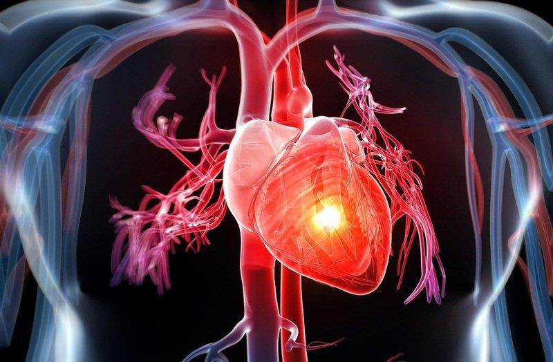 Thông tim ống lớn và chụp buồng tim cản quang - ảnh 1